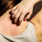Atopowe zapalenie skóry a dieta